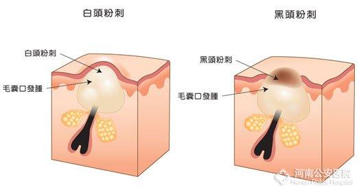 图注:白头粉刺与黑头粉刺的区别